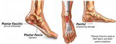 Plantar Fasciitis Treatments - Heel Pain #PlantarFasciitis #PlantarFasciitisCure #PlantarFasciitisTreatments #RunningInjury #RunningInjuries