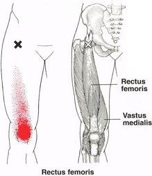75 terms · Linea glutea anterior, Spina iliaca anterior
