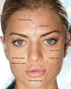 botox restylane on crow's feet & smile lines.......... Probably start this in another year!!! Gotta stay young!