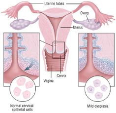 decrease saturation -25 from original Health Pictures of Cancer - Pictures Health Information