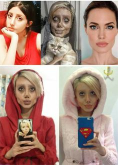 """Did This Girl Really undergo 50 Plastic Surgeries To Look Like Her Idol Angelina Jolie The 22 years old girl went through 50 surgeries just to look like her idol """"Angelina Jolie"""" but end up looking like the evil mum from Coraline. Botched Plastic Surgery, Bad Plastic Surgeries, Plastic Surgery Gone Wrong, Plastic Surgery Procedures, Angelina Jolie Look Alike, Angelina Jolie Plastic Surgery, Celebrity Plastic Surgery, Anti Aging, Under The Knife"""