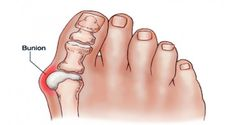 Get Rid of Bunions Naturally With This Simple But Powerful Remedy  More at: http://livinglearningandloving.com/things-we-like-and-love/