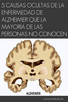 El Alzheimer puede ser una enfermedad extremadamente debilitante, y millones de personas son afectadas por ella cada año. Décadas de investigación han demostrado que la acumulación de proteínas tóxicas en el cerebro - beta amiloide y tau - puede conducir al Alzheimer. Algo que está menos claro son los factores que hacen que estas proteínas se acumulen. Sin embargo, estudios recientes han comenzado a explicar el proceso, revelando nuevas causas posibles del Alzheimer. 1. Medicamentos…