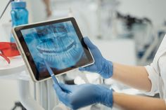 Weisheitszähne entfernen: ja oder nein? Dieses Wissen hilft bei der Entscheidung. Wound Healing, Oral Hygiene, Local Dentist Office, Dentistry, Dental Caries