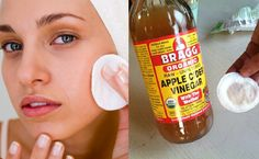5+Reasons+To+Wash+Your+Face+With+Apple+Cider+Vinegar