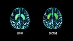 This is your brain on DRUGS ... and SUGAR | #FedUpMovie