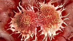 Oncólogos fijan 2025 como el año en que empezarán a bajar los casos de cáncer