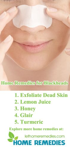 Home Remedies for Blackheads Blackheads are a common condition in skin of oriental women. There are many reasons that lead to blackheads, the weather, the structure of skin pores, oily skin, etc. So, how to get rid of blackheads obnoxiously? There are many ways to handle this problem. But these chemical products are not good for your skin. Here are 25 wholesome natural home remedies for blackheads. https://lethomeremedies.com/home-remedies-for-blackheads/