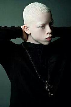 Albino people are beautiful Modelo Albino, Foto Portrait, Portrait Photography, Pretty People, Beautiful People, Melanism, People Of The World, Interesting Faces, Black Is Beautiful