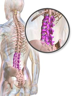 Lack of Mobility and Pain in Fibromyalgia, Part Lumbar Herniated Disc - Fibro Daily Middle Back Pain, Low Back Pain, Aorta Abdominal, Thoracic Vertebrae, Merck Manual, Back Stretches For Pain, Muscle Disorders, Spinal Decompression, Hernia