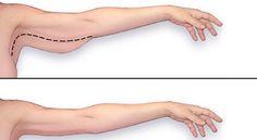 comment perdre le gras du bras