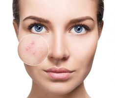 Young woman with acne skin in zoom circle. Young woman with perfet skin and acne , Best Acne Treatment, Face Treatment, Acne Skin, Oily Skin, Acne Face, Acne Scars, Activated Charcoal Detox, Painful Pimple, Aloe Vera Face Wash