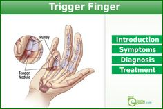 Trigger finger – A painful condition that causes Thumb or finger to get locked. Causes,Symptoms and treatment for trigger finger are explained here.