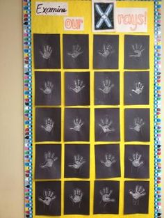 X-Ray Craft Just black construction paper, white tempera paint, and white crayon. Simple, quick, and who doesn't love a good hand-print project?  :-) by tanisha
