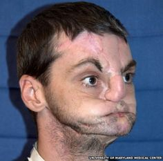 Exciting News from Around the World: Unbelieveable Face Transplant--Woman Meets her Dead Brother's Face