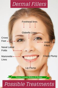 Great visualization of where you can utilize #Botox or other dermal #fillers to help smooth your wrinkles!
