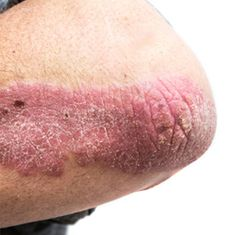 plaque psoriasis heart disease