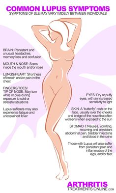 Common Lupus symptoms