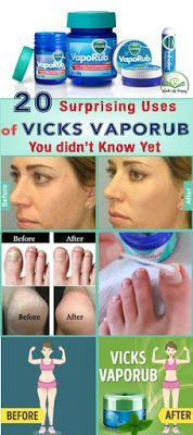 Vicks VapoRub is commonly used in the treatment of headaches, cold, cough, stuffy nose, throat and chest. Vicks VapoRub is even more powerful than this. Vicks Vapor Rub Uses, Vapo Rub Uses, Uses For Vicks, Vicks Rub, Vicks Vapour Rub, Chest Congestion Remedies, Sinus Congestion, Getting Rid Of Headaches, Weight Loss Juice