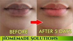 Remove Darkness From Lips Forever | Lighten Your Lips Naturally In 5 Days - YouTube