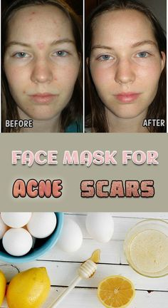 9_129_face-mask-for-acne-scars