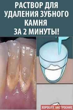 This Mouthwash Removes Plaque From Teeth In 2 Minutes! This mouthwash will remove plaque from teeth. Oral Health, Health And Nutrition, Healthy Teeth, Healthy Life, Healthy Eating, Teeth Care, Alternative Treatments, Holistic Remedies, Exercises