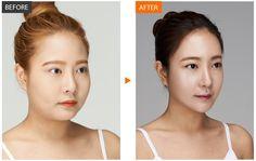 #바노바기성형외과 #바노바기 #안면윤곽 #양악수술 #쌍꺼풀수술 #성형수술 #mandible #contouring #KoreanPlasticsurgery #Korea #KoreanSurgeon #Surgeon