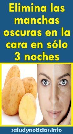 Elimina las manchas oscuras en la cara en sólo 3 noches - SALUD & NOTICIAS