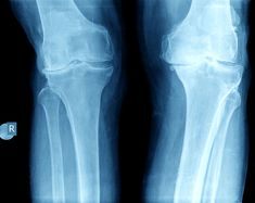 Why is an xray important when you suffer an injury? Here are several important reasons your doctor might get xrays instead of an MRI. Bone Fracture, Bad Knees, Sports Medicine, Stay In Shape, Physical Therapy, Short Film, Let It Be, Exercises, David