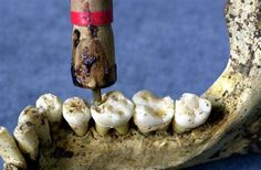 In archaeologists studying the remains of two men from Mehrgarh made the discovery that the people of the Indus Valley Civilization, from the early Harappan periods, had knowledge of proto-dentistry. Ancient Artifacts, Ancient Egypt, Ancient History, Bronze Age Civilization, Indus Valley Civilization, Harappan, Mohenjo Daro, Medical History, Interesting History