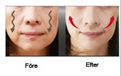 Straffe Wangen durch diese 4 Hausmittel In this post you will find simple, inexpensive tips for firm cheeks and a smoother facial skin. If you want to tighten your drooping cheeks, we recommend that y Beauty Care, Diy Beauty, Beauty Skin, Health And Beauty, Beauty Hacks, Sagging Cheeks, Face Yoga, Yoga Facial, Facial Exercises