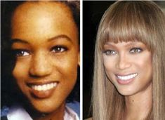 Celeb Surgery Tyra Banks Nose Job Before and After - http://celebrityfreeze.com/celeb-surgery-tyra-banks-nose-job-before-and-after/?Pinterest