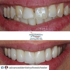 #Repost @advanceddentistryofwestchester with @repostapp.  When missing teeth have necessitated #orthodontic shifting #CosmeticMakeovers can complete the #transformation #transformationtuesday #cosmeticdentistry #westchester #dentistry #beforeandafter #westchesterdentist #cosmeticmakeover #beautifulsmile #makeover #beauty #smile #teeth #veneers #dentalimplants #aestheticdentistry #porcelainveneers #celebritysmile #cosmeticdentist #oralhealth #nyfw #designersmile #smilemakeover #smiledesign…