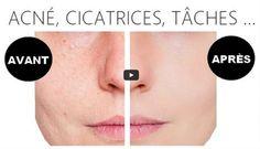 La solution pour faire disparaître les tâches de la peau : acné, vieillesse, cicatrices... - Astuces de grand mère