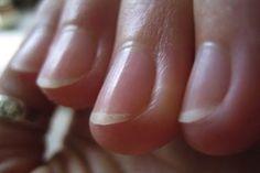 las uñas en el diagnostico de enfermedades. Leer aquí el artículo: http://www.suplments.com/consejos/las-unas-en-el-diagnostico-de-enfermedades/