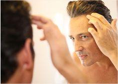 vikande hårfäste, tunt hår eller skallighet under någon