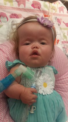 Jillian is 8 months old and has a rare form of dwarfism. October is Dwarfism Awareness month.