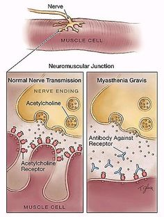 Pathophysiology of Myasthenia Gravis - Pinning because this is good for reference