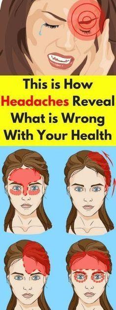 Med Express: Overcoming Headaches