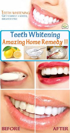 Amazing home remedy to whiten your teeth - Modern Teeth Whitening Cost, Whitening Skin Care, Natural Teeth Whitening, Smile Teeth, Teeth Care, Make Teeth Whiter, Teeth Straightening, Home Remedies, Amazing