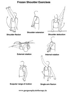 Physiotherapy - Exercise For Frozen Shoulder Ot Therapy, Massage Therapy, Physical Therapy, Frozen Shoulder Exercises, Shoulder Workout, Shoulder Stretches, Hip Strengthening Exercises, Shoulder Rehab, Hypermobility