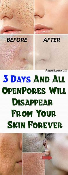 3 Days and All Open Pores Will Disappear From Your Skin Permanently – Herbal Medicine Book Natural Toner, Natural Skin Care, Natural Health, Apple Cider Vinegar For Skin, Apple Cider Toner, Lotion Tonique, Brown Spots On Face, Dark Spots, Rides Front