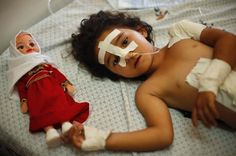 Four-year-old Palestinian girl Shayma Al-Masri, who hospital officials said was wounded in an Israeli air strike that killed her mother and two of her siblings, lies on a bed next to her doll as she receives treatment at a hospital in Gaza City July 14, 2014. The girl and her father were the only survivors left in the family...(Wissam Nassar/The New York Times)