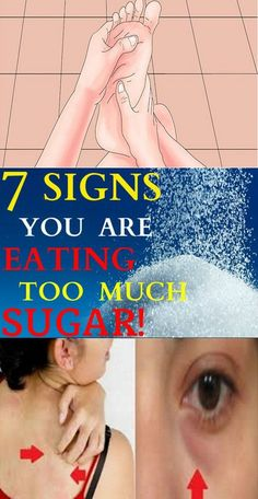 7 Signs You Are Eating Too Much Sugar – Lifee Too