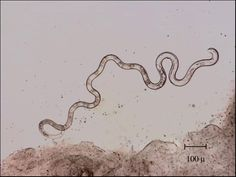 Nematodes, also known as Roundworms, are a very common phyla of animals of which there are many parasitic forms.
