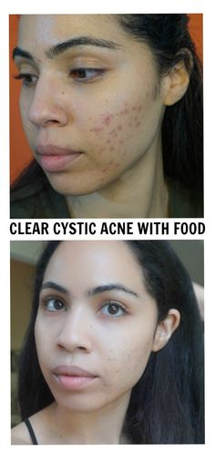 I was able to clear my cystic acne by eliminating certain foods from my diet and incorporating fermented veggies and omega 3s. Before and after pictures and video included.