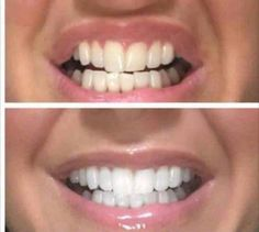 More unbelievable results from one of our customers who used the whitening toothpaste  It really works!! DM for more details #AP24 #TeethWhitening #Toothpaste #WhiteTeeth #Results #Amazing #BeforeAndAfter #NatalieBeautyPage #Nuskin #Smile #Teeth #Beauty by nataliebeautypage Our Teeth Whitening Page: http://www.myimagedental.com/services/cosmetic-dentistry/teeth-whitening/ Other Cosmetic Dentistry services we offer: http://www.myimagedental.com/services/cosmetic-dentistry Google My Business…