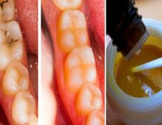 Reverse-Cavities-Naturally-and-Heal-Tooth-Decay-with-THIS-Powerful-Tooth-Mask