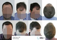 FUE Hair transplant surgery on a single session performed by Ozge ERGUN, MD ®  https://ozgeergun.com.tr/en/ For more information 📲 WhatsApp: +90 543 470 4709 #hairtransplant #hairtransplantation #hairtransplantturkey #hairtransplantistanbul #TurkeyHairTransplant #hairtransplantationturkey #haartransplantation  #haartransplantationtürkei  #fuehairtransplant #greffedecheveux #trasplantecapilarturquía  #trasplantedepelo #haartransplantatieturkije #haartransplantatie…