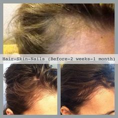 Grow your edges back with It Works! Hair Skin Nails. Order today @ www.Essentially-Green.com